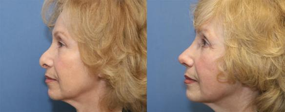 Secondary rhinoplasty, revision rhinoplasty