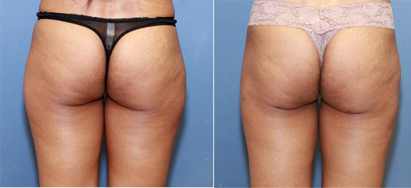 liposuction of saddlebags and thighs for an athlete