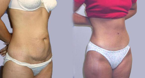 abdominoplasty, Beverly Hills, Newport Beach