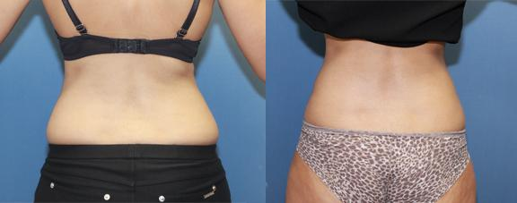 """liposuction of the hip rolls or """"grab handles."""""""