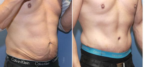 male tummy tuck  Jon Perlman MD