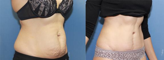 Liposuction of the grab handles with a tummy tuck.