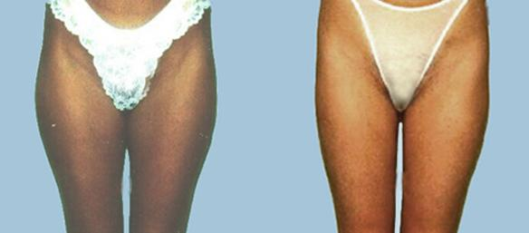 Liposuction of thighs and saddlebags to shape the buttocks and slim the thighs