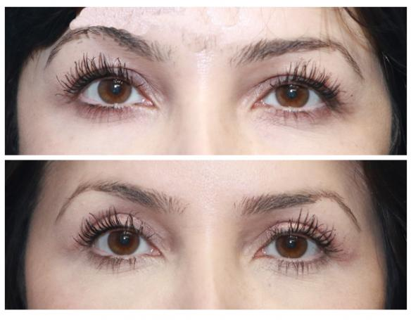 blepharoplasty or upper eyelid lift