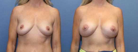 D cup size   breast augmentation Beverly HIlls