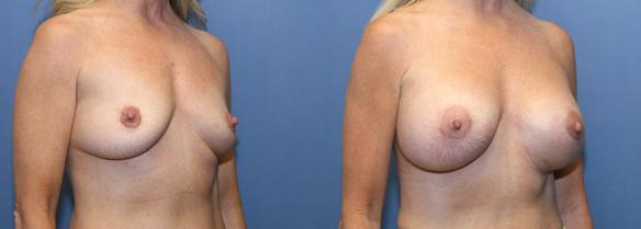 D cup size  DD cup size breast augmentation Beverly :HIlls