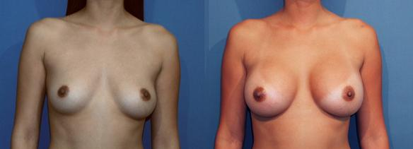 full C cup size breast augmentation with breast implants in Beverly Hills, CA