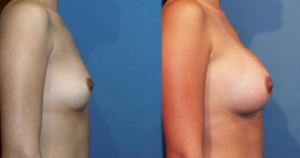 full C cup size breast augmentation with breast implants in Beverly Hills 90210