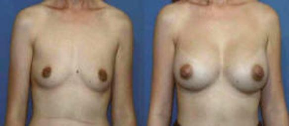 breast enhancement with breast implants C cup size