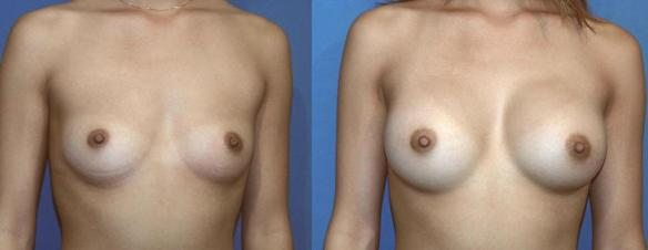 breast enlargement to a C cup size with silicone breast implants