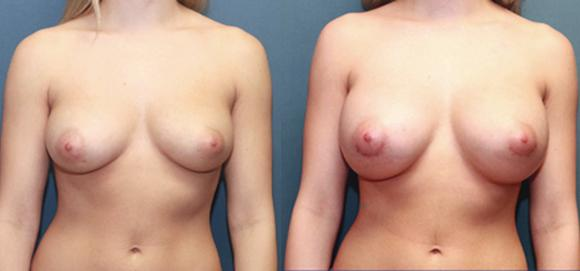 breast enlargement D cup sze silicone breast implants