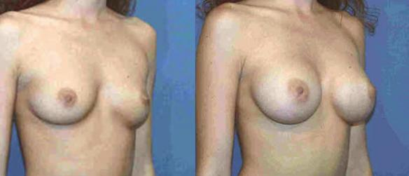 breast enhancement to a C cup size with breast implants Beverly Hills
