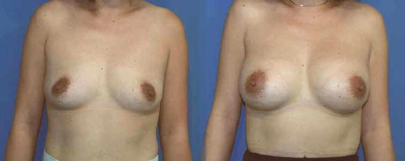 breast enlargement full C cup size with silicone breast implants.