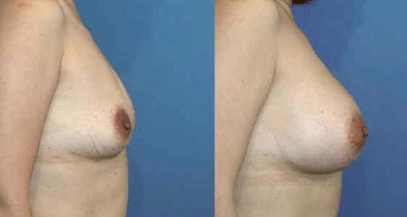 breast enlargement to a full C cup size  breast implants