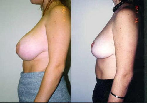 breast reduction, E cup size, DD cup size, C cup