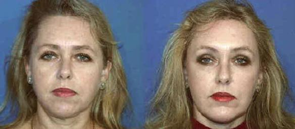 eyelid lift or blepharoplasty with face and neck lifts