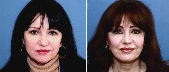 facelift, browlift, face lift, brow lift, rhinoplasty, nose surgery
