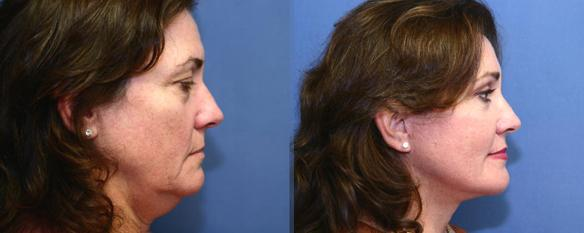 face lift, neck lift and brow lift 90210 Beverly Hills, CA