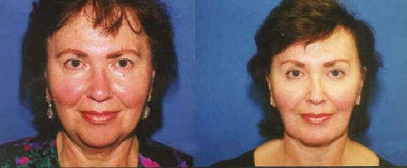 brow lift with face lift and neck lift
