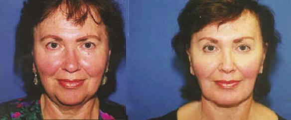 face lift brow lift, chin implant