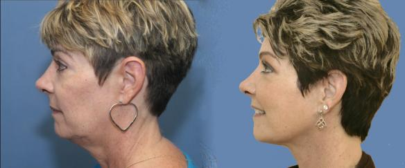 face lift, neck lift and face peel laser to restore youthful appearance.