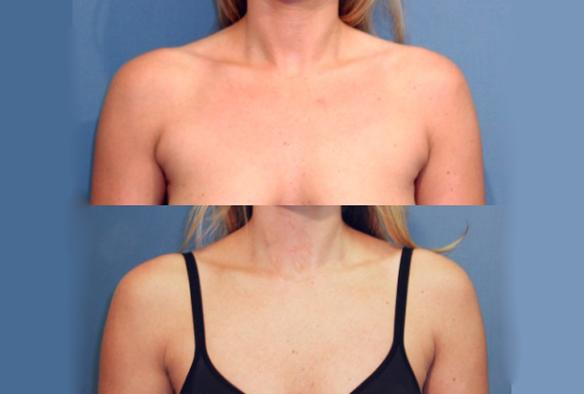 liposuction, underarm, chest.