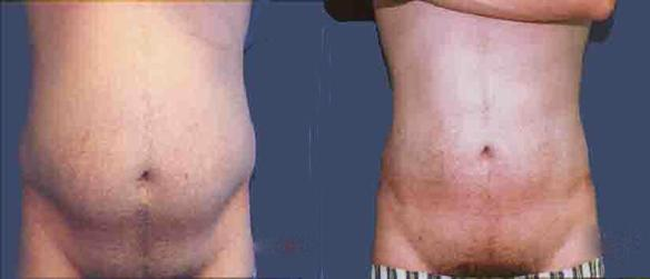 liposuction stomach male body sculpting