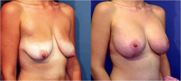 breast lift or mastopexy with silicone breast implants.
