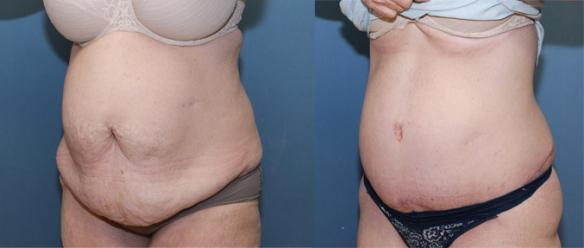 Extended full tummy tuck after weight loss of 110lbs.