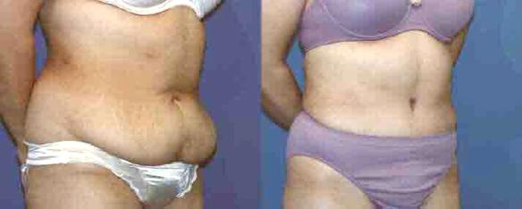 tummy tuck or abdominoplasty for body sculpting Beverly HIlls, Woodland Hills