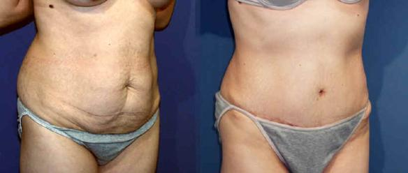 tummy tuck, abdominoplasty, body sculpting, liposuction
