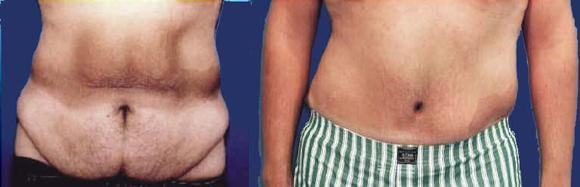 Male tummy tuck or male abdominoplasty